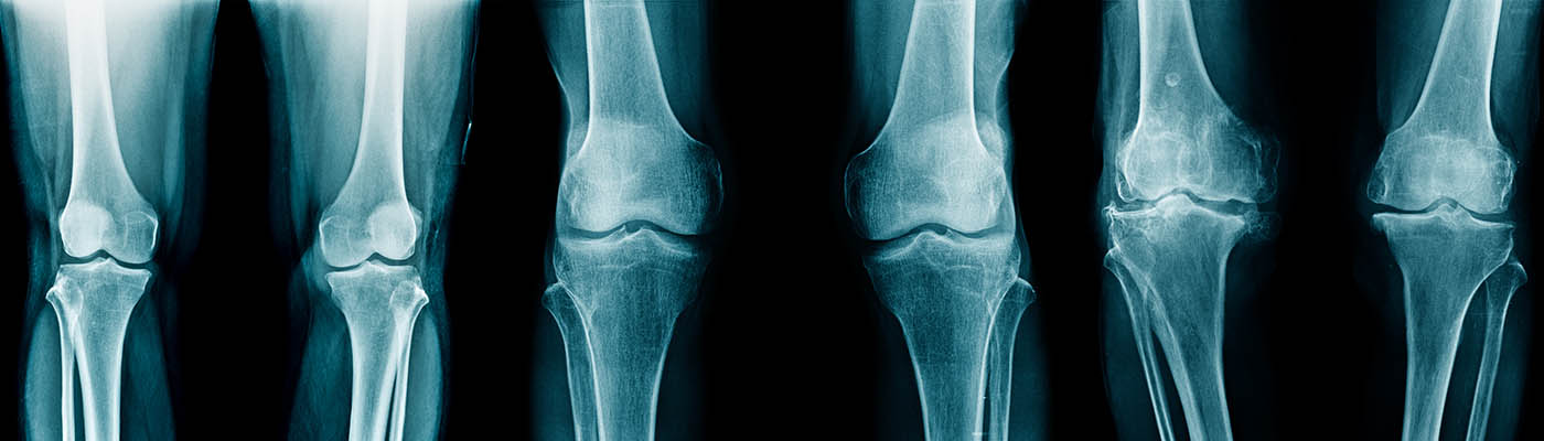 Stages of knee joint degeneration
